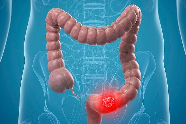 Colon Cancers Oncologia E Cucina